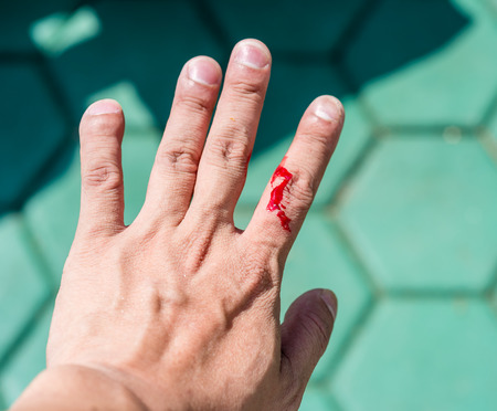 Real blood  on finger of a mans hand which caused by knife