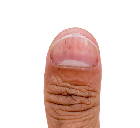 Uñas que tienen la enfermedad de hongos en mano aislado en blanco Foto de archivo - 89831061