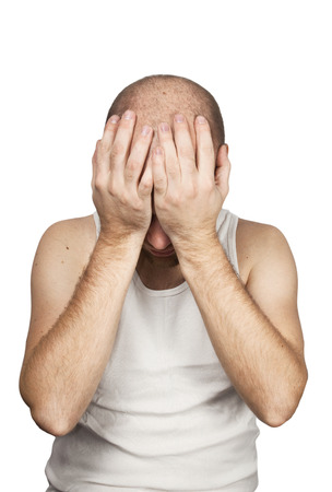 White bald guy in white shirt on white background suffers from headache. Stock Photo