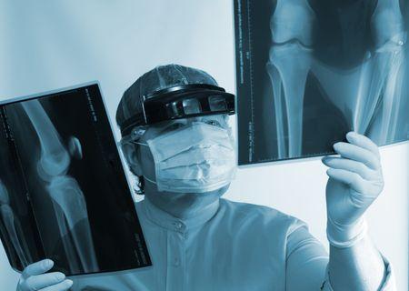 roentgenograph: Mature doctor examining X-ray image near window Stock Photo