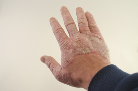 exacerbation of psoriasis in the hands