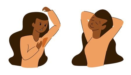Vector flat isolated illustration of woman with and without hyperhidrosis.