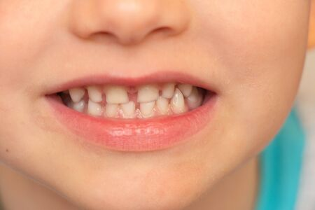 baby white teeth close-up, smiling little boy
