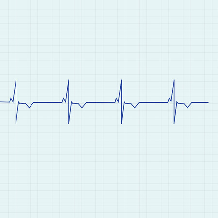 rhythm: Blue ekg line on graph paper background, heart monitor,heart rhythm vector