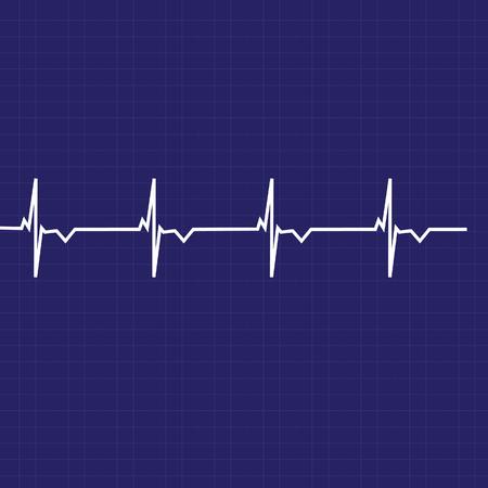 heart monitor: Blue ekg line on black background, heart monitor,heart rhythm raster