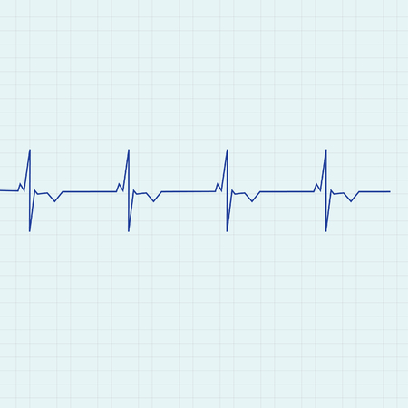 graph paper: Blue ekg line on graph paper background, heart monitor,heart rhythm raster Stock Photo