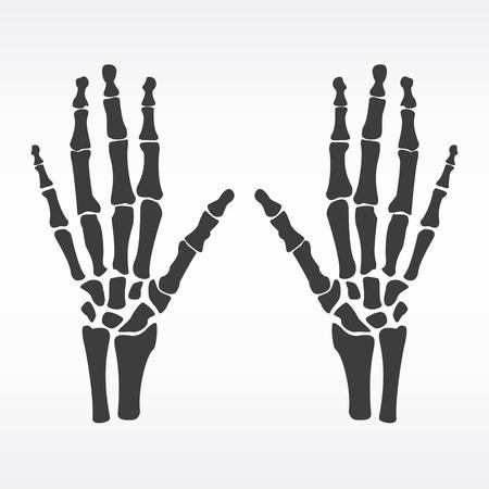 distal: Raster illustration hands bones. Orthopedic human hand skeleton icon. Diagnostic center. Pair of human hands
