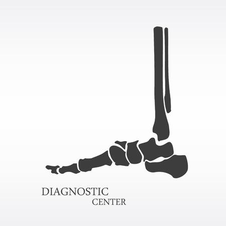 talus: Vector illustration foot bone anatomy side view. Orthopedic flat icon. Diagnostic center