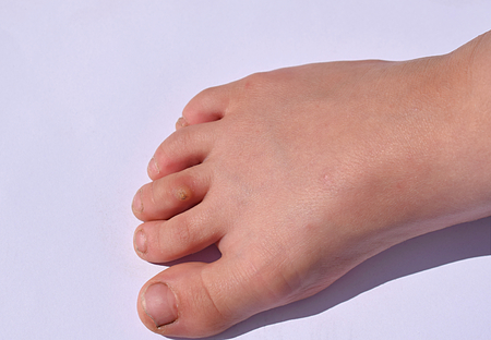 The usual flat wart on the child's toe, close-up. Stock fotó