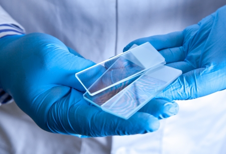 slide glass: Scientist holding frosted glass microscope slides