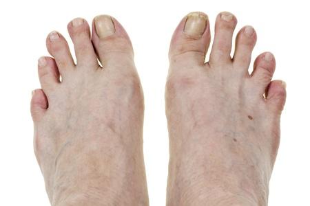 아무 명: 노인 다리 발 비뚤어진 손가락, 깨진 손톱, 더러운 피부 매크로 이름없는 대량 생산 남자. 고립 된, 선택적 포커스.
