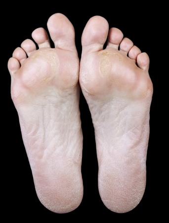 The underside of the foot of an old woman with calluses on black background