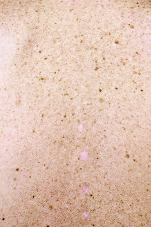 The surface of the skin back the elderly woman. A lot of moles, blemishes and scars from cut off warts.