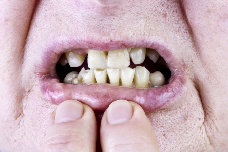 harm: Yellow  elderly female teeth and sore lips, large pores on the loose skin  macro. The harm of alcohol and tobacco concept. Selective art focus Stock Photo