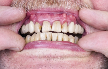 Problems with the teeth and gums concept.  One of the health problems in the elderly. The harm of alcohol and tobacco. photo