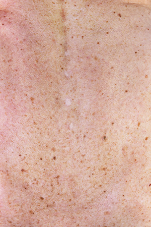 moles: The surface of the messy spotty  dirty  old women female  skin. A lot of moles blemishes and scars from cut off warts.