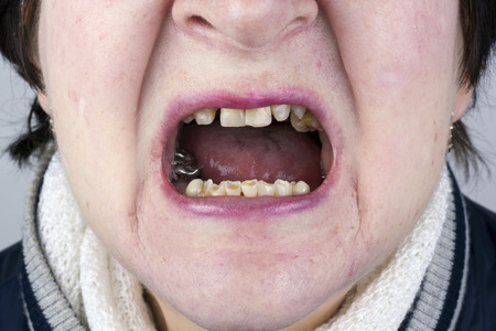 defective: The elderly woman shows the destroyed erased crumbled teeth and defective skin