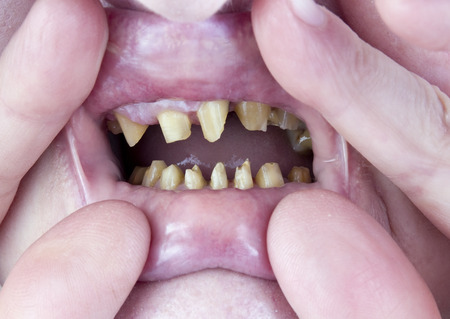 artificial teeth: Teeth of the elderly woman are processed and cut for installation of ceramic artificial denture