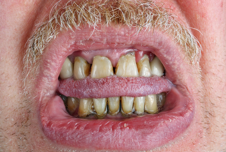 Yellow teeth and mustache, bitten tongue and dry lips in an elderly old man macro. The harm of alcohol and tobacco concept. Studio macro shot Banque d'images