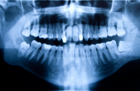Full mouth panoramic in X-ray, showing all the teeth photo