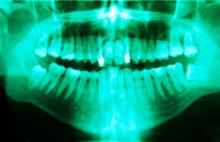 Full mouth panoramic in X-ray, showing all the teeth Stock Photo