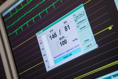 Blood Pressure Heart Rate Monitor