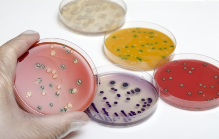 Petri dish with bacteria Listeria monocytogenes in a hand of scientist  Stock Photo