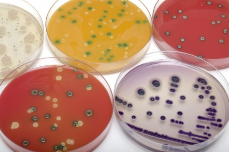 Bacterial plates, top view  photo