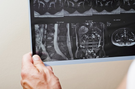 MRI of a patient with spinal pathology Stock Photo - 11804437