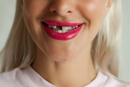 Adult woman with broken front tooth smiling Stockfoto