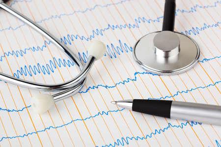 Stethoscope and pen on ecg - medical background Stock Photo - 5151706