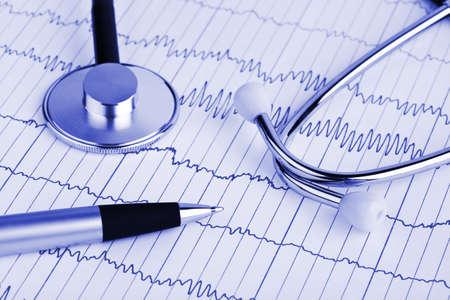 Stethoscope and pen on ecg - medical background Stock Photo - 5473294