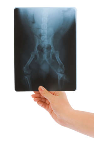 X-ray in hand isolated on white background photo