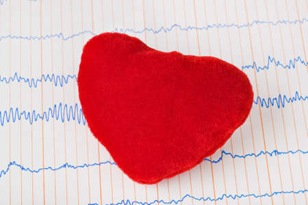 Toy heart on ecg - medical background Stock Photo - 8403735