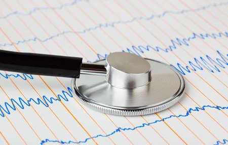 Stethoscope on ecg - medical background Stock Photo - 8403734