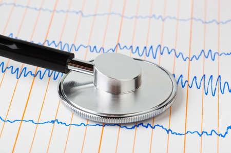 Stethoscope on ecg - medical background Stock Photo - 9359742