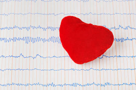Toy heart on ecg - medical background Stock Photo - 9527504