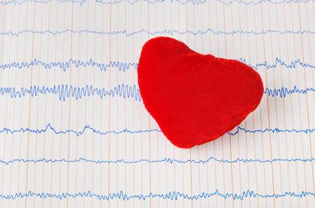 Toy heart on ecg - medical background Stock Photo - 9527504