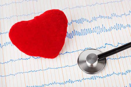Heart and stethoscope on ecg - medical background Stock Photo - 9640643