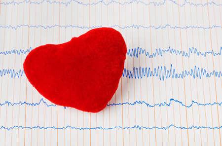 Toy heart on ecg - medical background Stock Photo - 13319003