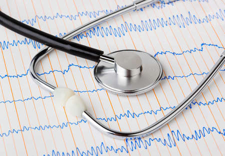 Stethoscope on ecg - medical background photo