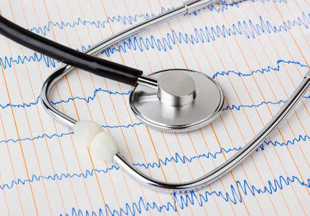 taking care: Stethoscope on ecg - medical background