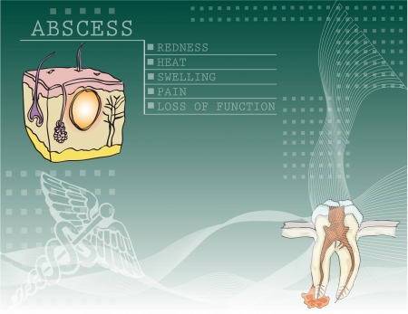 sintoma: The background to the disease abscess with illustrations and medical symbols.