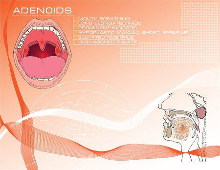 sintoma: Cartoon background on medical subjects on adenoids with a description of symptoms.