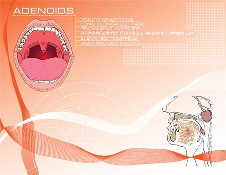 Dibujos animados de fondo sobre temas m�dicos en las adenoides con una descripci�n de los s�ntomas. Foto de archivo - 10990600