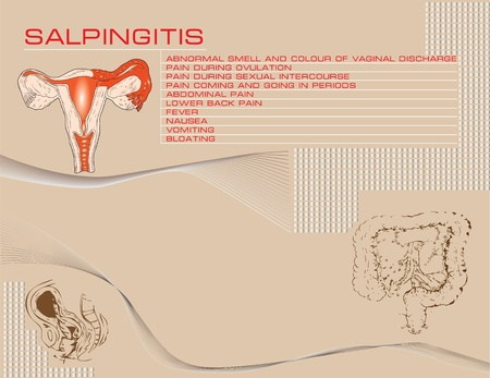 vaginal: Medical theme Salpingitis. Illustration with symptoms and a schematic drawing of damaged organs. Illustration