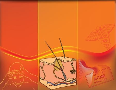ailment: Ilustraci�n vectorial de la enfermedad de acn� con el esquema y dibujos adicionales de crear un collage. Temas m�dicos. Vectores