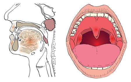 laringe: Ilustraci�n vectorial de una enfermedad de las adenoides con las agencias afectadas. Vectores