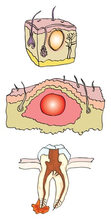 affected: Vector illustration of an abscess, with the affected parts of the body.