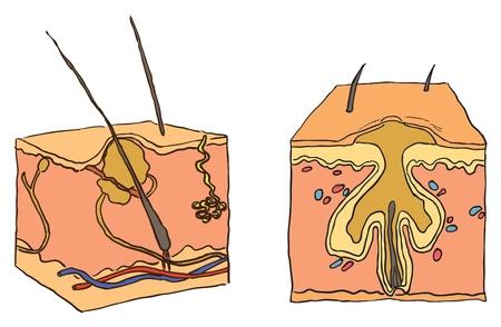 Vector illustration d'un �tat de sant� l'acn�. La maladie cosm�tique.